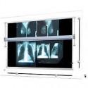 Negatoskop żaluzjowy do mammografii NGP 41 mZ