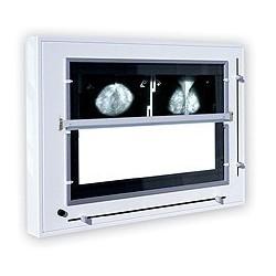 Negatoskop żaluzjowy do mammografii NGP-31 mZU